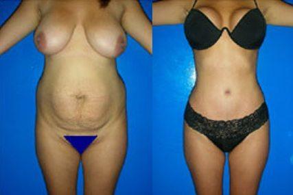 abdomen surgery woman