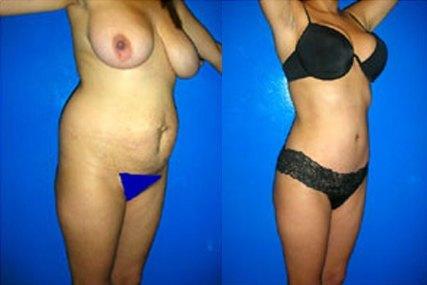 cirugía vientre mujer