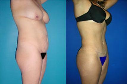 cirugía abdomen mujer