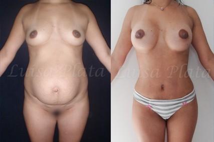 cirugía estética cuerpo mujer