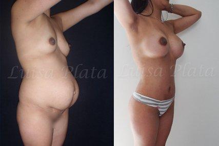 operación cuerpo mujer