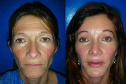 liposucción facial