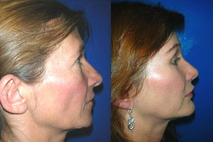 cirugía liposucción facial