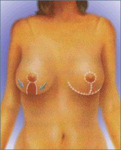 Mamopexia con implantes