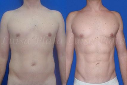 cirugía abdominal hombre