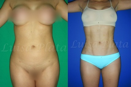 cirugía abdominal mujer