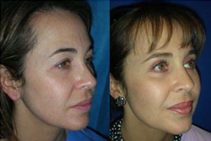 cirugía ojos párpados