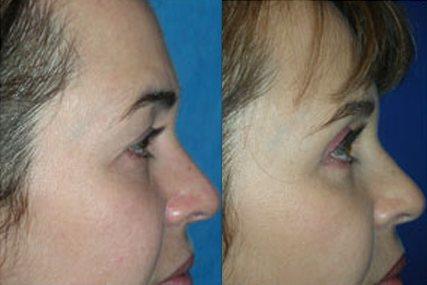 cirugía ojos