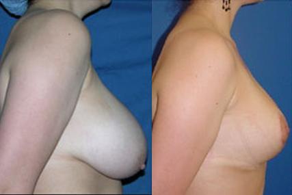 cirugía reducción de pecho