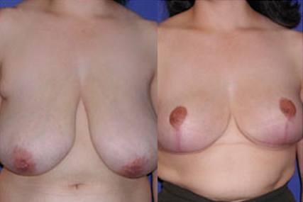 cirugía reducción de senos