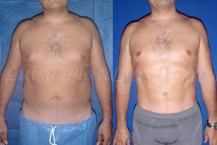 cirugía liposucción hombre