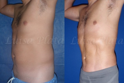 liposuction surgery man