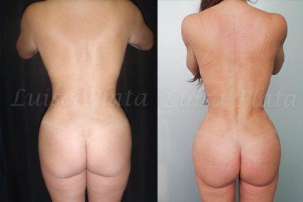 lipectomia mujer 6-3
