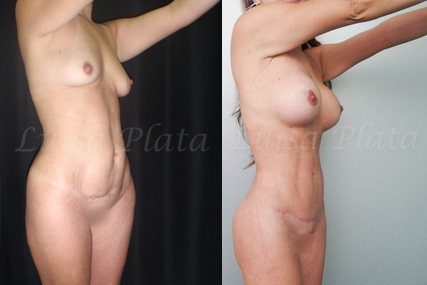 lipectomia mujer 6-5