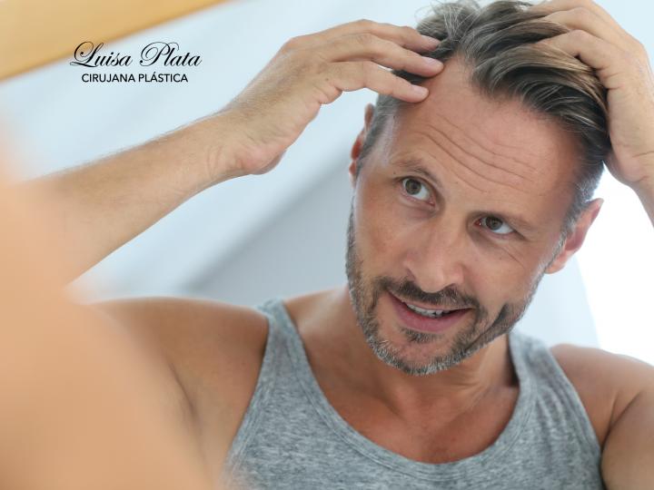 Alopecia masculina: causas y tratamientos estéticos de vanguardia